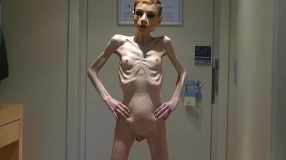 Unconscious Anorexic Skeleton Girl Porn Sex Pics